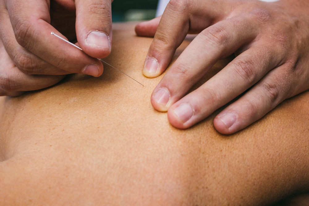 dry needling fysiotherapie gorecht